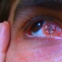 Eyeball Tattoos Are Even Worse Than They Sound